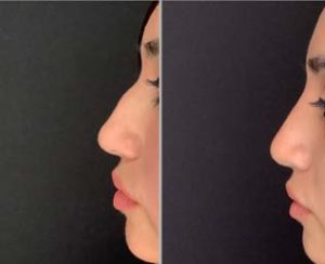 27 yo female received 1cc of filler to change the contour of her nose